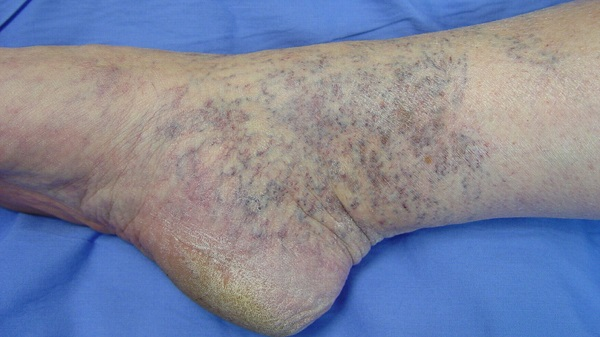 Ankle spider veins