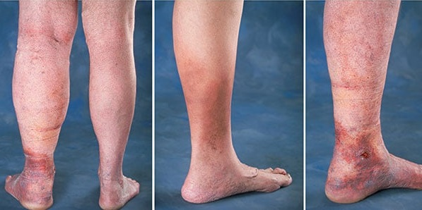 Chronic Venous Insufficiency Legs