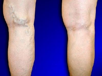 Варикозная болезнь нижних конечностей в Твери - причины, симптомы, осложнения и лечение